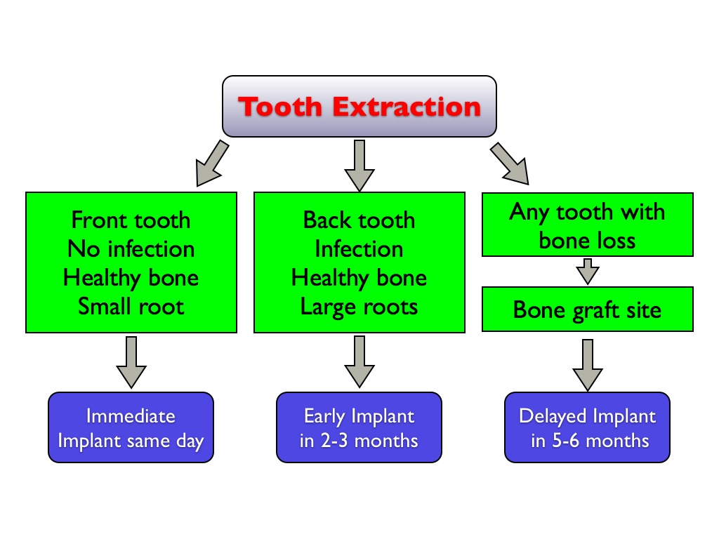 Teeth extractions for braces selective dentistry george saliba dds ccuart Choice Image