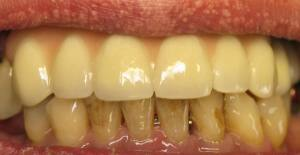 What To Avoid For Whiter Teeth 2